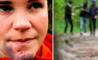 Köpeğini gezdirmeye çıkaran kadın, kimliği belirsiz gençler tarafından feci şekilde dövüldü