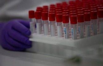 Covid-19 aşısının bir iki yılda bulunabilmesi mümkün mü?