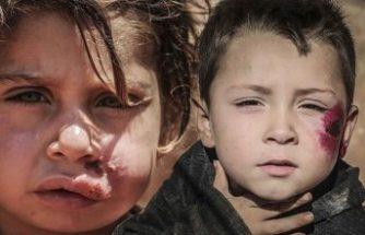 İdlib'deki sığınmacı kamplarında şark çıbanı hastalığı yayılıyor
