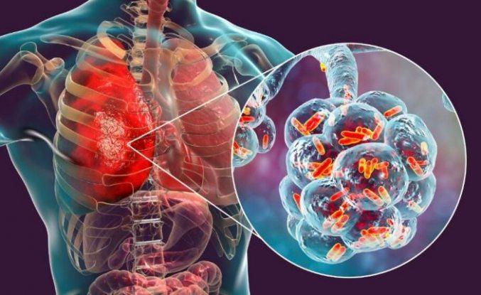 Koronavirüs ile benzerliği dikkat çekiyor: Bu hastalığa dikkat!