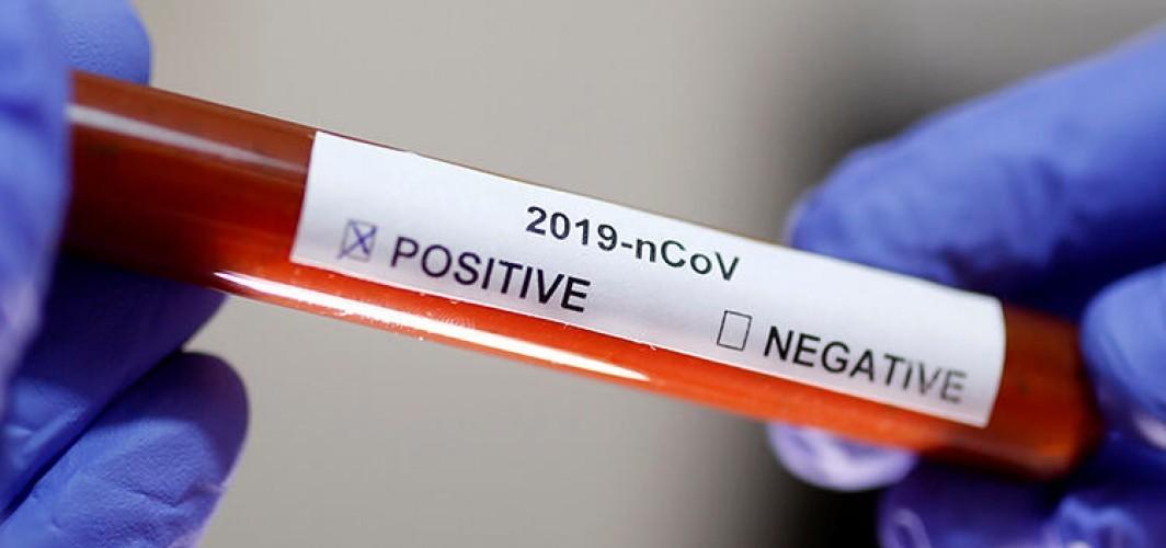 Türkiye İran'daki virüs vakalarını yakından takip ediyor - Türkiye ile İran arasında koronavirüsü görüşmesi