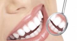 Diş sağlığı ile ilgili doğru bilinen 10 yanlış