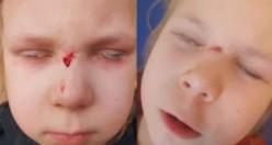 İsveç'te doktor küçük kızın göz kapaklarını tutkalla yapıştırdı!