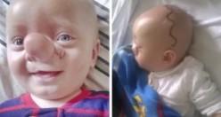 Burnu yüzünden Pinokyo deyip dalga geçtiler - 3 Yıl sonra bakın nasıl değişti