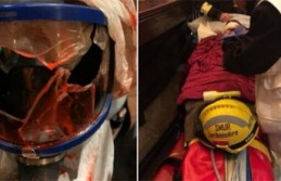 Fransa'da gösterilerde gözünden yaralanan Türk Foto Muhabiri ameliyat oldu