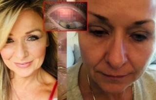 25 yıl boyunca yüzünü yıkamayan kadın doktorları...