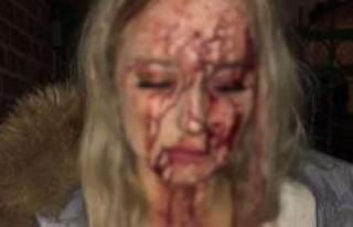Şok fotoğraf! İsveçli genç kızın başına şişe...