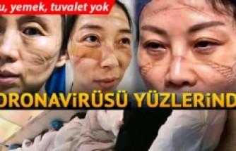 Wuhan'da coronavirüsüyle mücadele eden doktorların yüzündeki fedakarlık izi