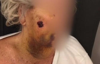 İsveç'te 92 yaşındaki kadın feci şekilde dövüldü